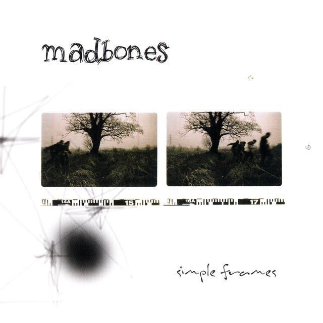 Madbones